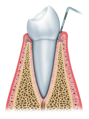Periodontal Disease Treatment in Shawnee, OK