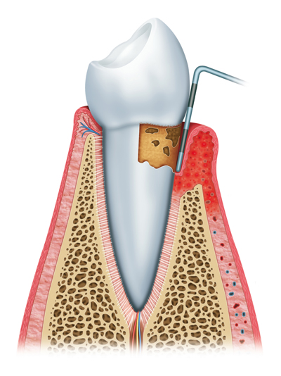 Gum Disease Treatment in Shawnee, OK